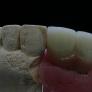 ceramo-implant-2.jpg