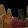 fixe_implant-03.jpg